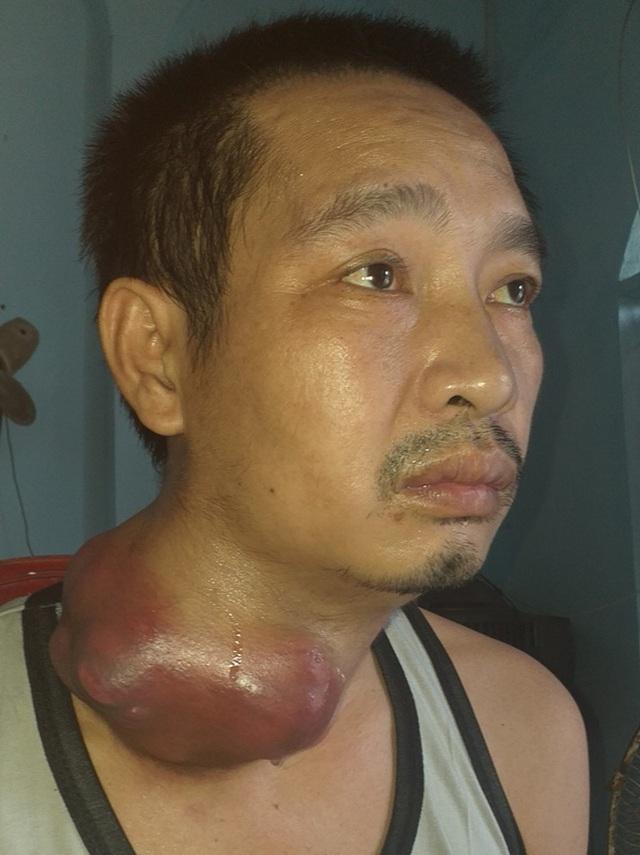 Người đàn ông nghèo đau đớn mang khối u như những chiếc bát úp vào cổ - 1
