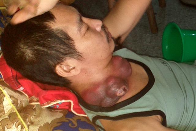 Người đàn ông nghèo đau đớn mang khối u như những chiếc bát úp vào cổ - 2