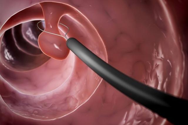 Những dấu hiệu cảnh báo ung thư đại trực tràng ít biết ở nữ giới - 5