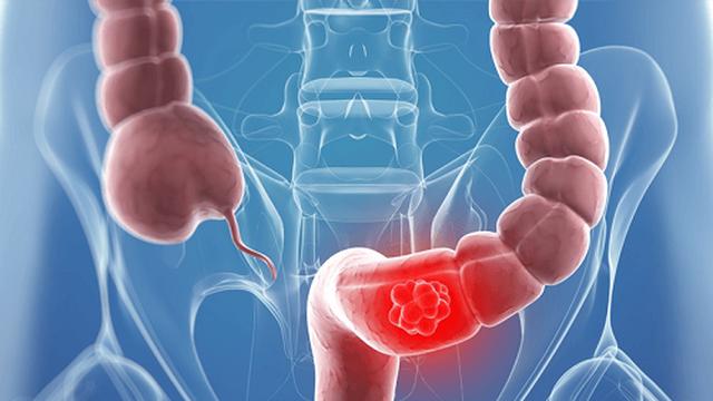 Những dấu hiệu cảnh báo ung thư đại trực tràng ít biết ở nữ giới - 3