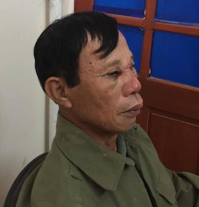Người đàn ông 66 tuổi bị khống chế, đánh đập dã man trong đêm - 2