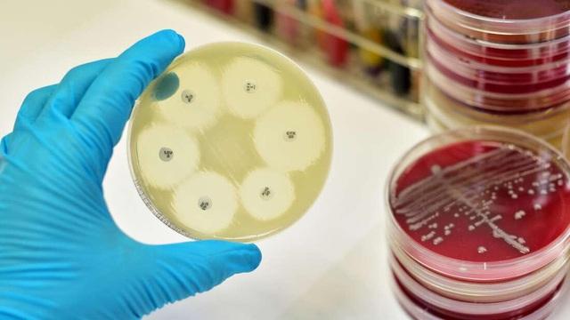 Vi khuẩn có thể bất chấp quy luật tiến hóa - 1