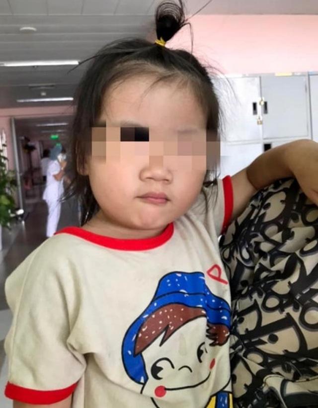 Trẻ sốt kéo dài, gia đình sốc khi biết do kim khâu gỉ đen trong người con - 3