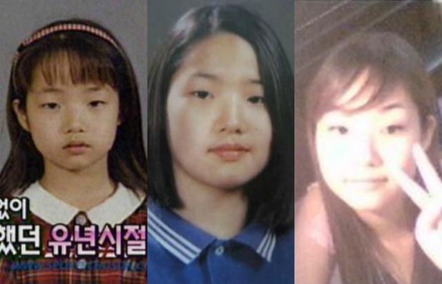 Bạn gái cũ của Lee Min Ho: Trở thành nữ thần sắc đẹp nhờ phẫu thuật thẩm mỹ - 3