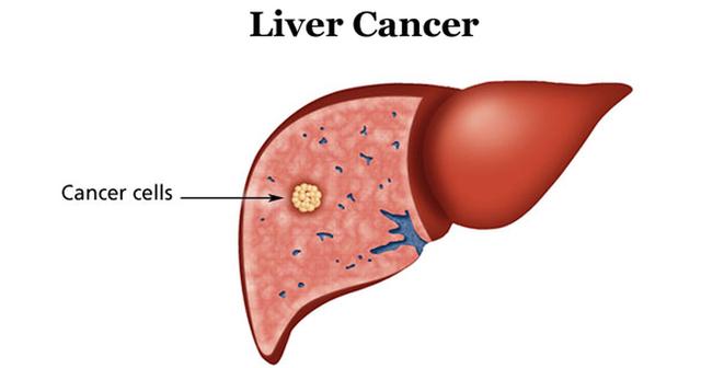 Lý do khiến chàng trai 20 tuổi đã mắc ung thư gan - 1