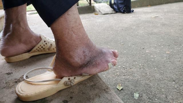 Hà Nội: Mảnh đời cuối cùng còn sót lại ở trại phong Đá Bạc - 7