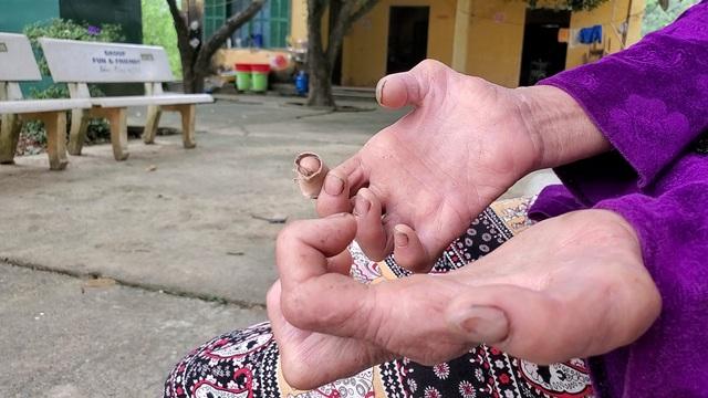 Hà Nội: Mảnh đời cuối cùng còn sót lại ở trại phong Đá Bạc - 2