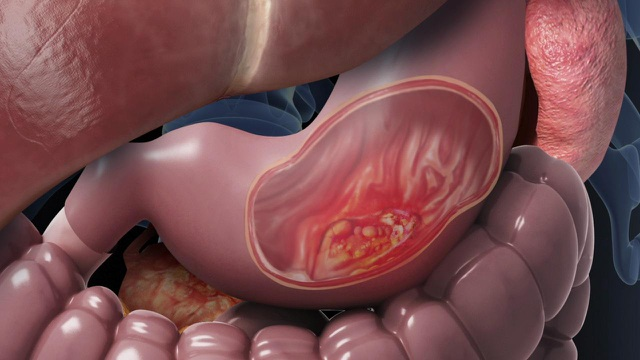 Đề phòng bệnh tiêu hóa tiến triển thành ung thư - 1