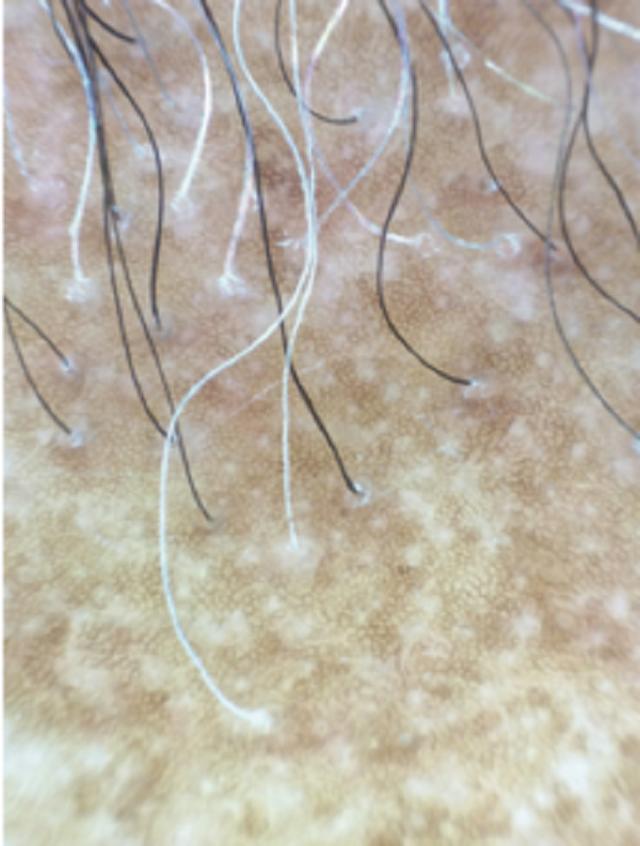 Nữ bệnh nhân bị rụng tóc, rụng lông mày vì bệnh hiếm gặp - 1