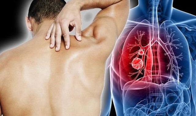 Làm gì để chẩn đoán ung thư phổi? - 1