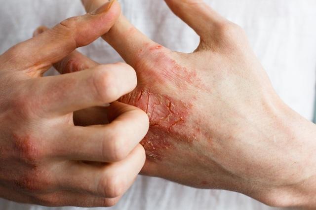 Cách nhận diện bệnh ngoài da do mưa lũ người dân miền Trung cần biết - 4