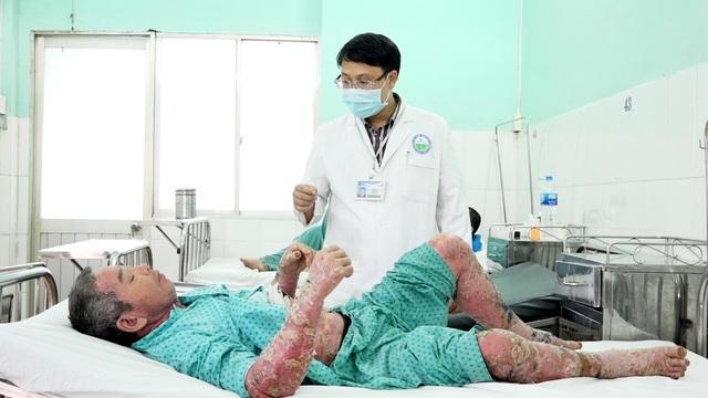 Người mắc bệnh vảy nến đối mặt với nhiều rối loạn chuyển hóa - 2