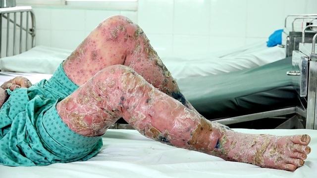 Người mắc bệnh vảy nến đối mặt với nhiều rối loạn chuyển hóa - 1
