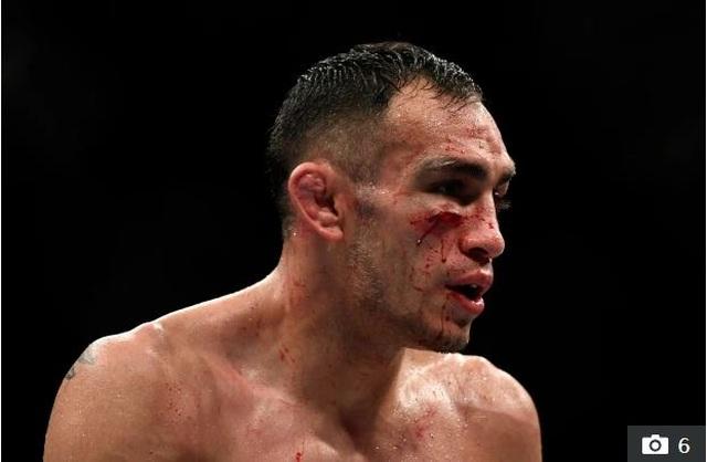 Khabib giải nghệ, ai sẽ là người giữ đai vô địch UFC hạng nhẹ? - 5