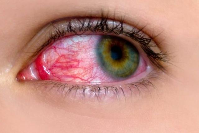 Cảnh báo bệnh lý về mắt thường bùng phát 10 ngày sau lũ - 2