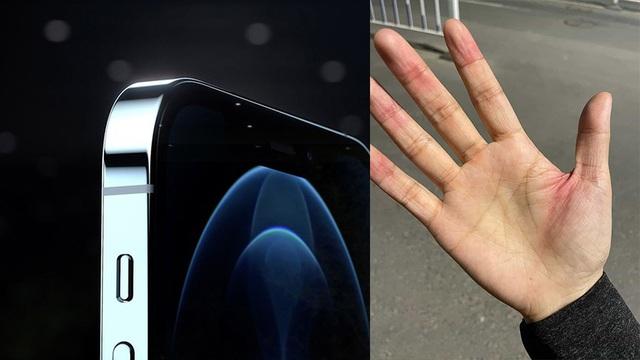 Người dùng phàn nàn iPhone 12 có cạnh sắc tới mức gây đứt tay - 1