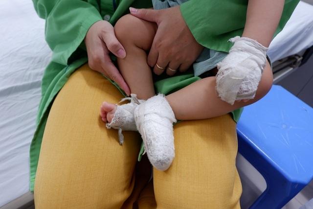 Mẹ dùng kem đánh răng chữa bỏng, bé trai phải nằm viện 4 tuần | Báo Dân trí