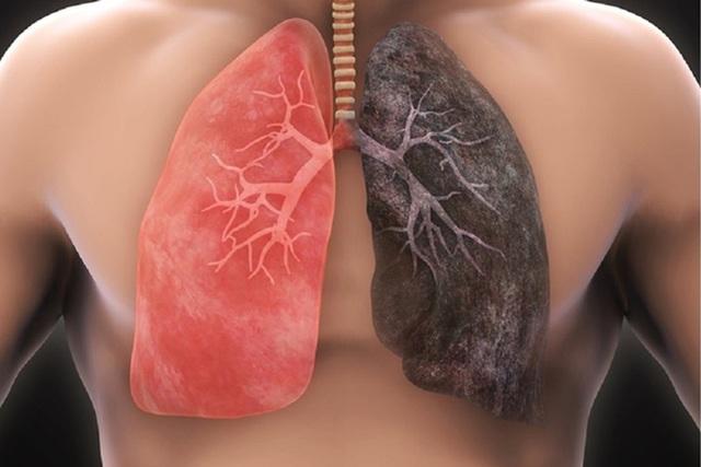 Ung thư phổi tế bào nhỏ phát triển nhanh, di căn xa sớm - 1