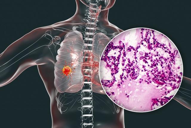 Ung thư phổi liệu có thể phát hiện sớm? - 1