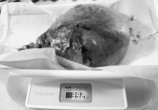 """Phẫu thuật thành công cho bệnh nhân bị khối u xơ """"khổng lồ"""" - 1"""
