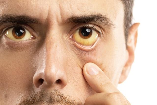 Vàng da, vàng mắt: Không chỉ là dấu hiệu của bệnh gan - 2