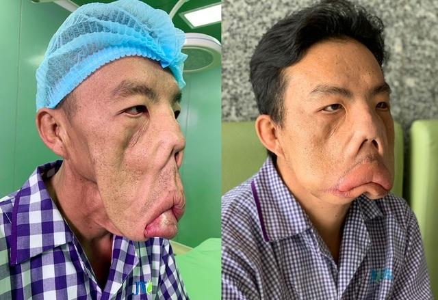 """Người mang """"gương mặt quỷ"""" mắc căn bệnh cực hiếm - 3"""