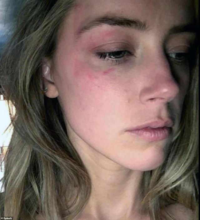 Tòa án kết luận cướp biển Johnny Depp đã đánh vợ - 2