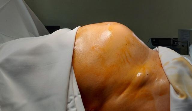 Tưởng ăn khỏe, người phụ nữ Hà Nội vô tình nuôi khối u khủng  - 1
