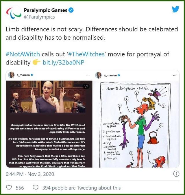 Phim khắc họa nhân vật phản diện có bàn tay khiếm khuyết gây bức xúc - 4
