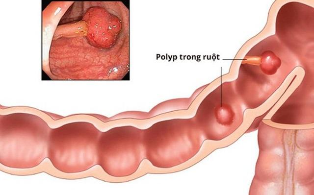 Lằn ranh mỏng manh giữa bệnh polyp đại tràng và ung thư - 1