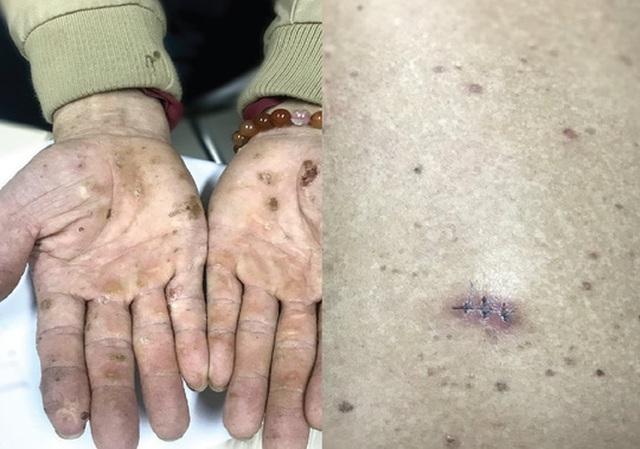 Sốc: Phát hiện ung thư da vì nhiễm độc thạch tín - 1
