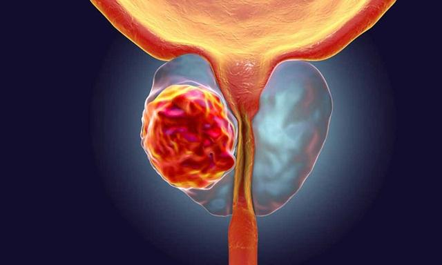 Những dấu hiệu cảnh báo ung thư tuyến tiền liệt - 1