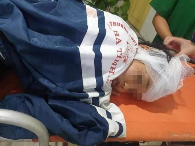 Bố chồng đánh con dâu đang mang thai và 2 cháu nội nhập viện - 2
