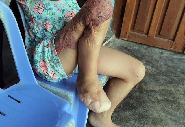 Bạn đọc Dân trí giúp đỡ bé gái hơn 130 triệu đồng tìm sự sống mong manh - 3