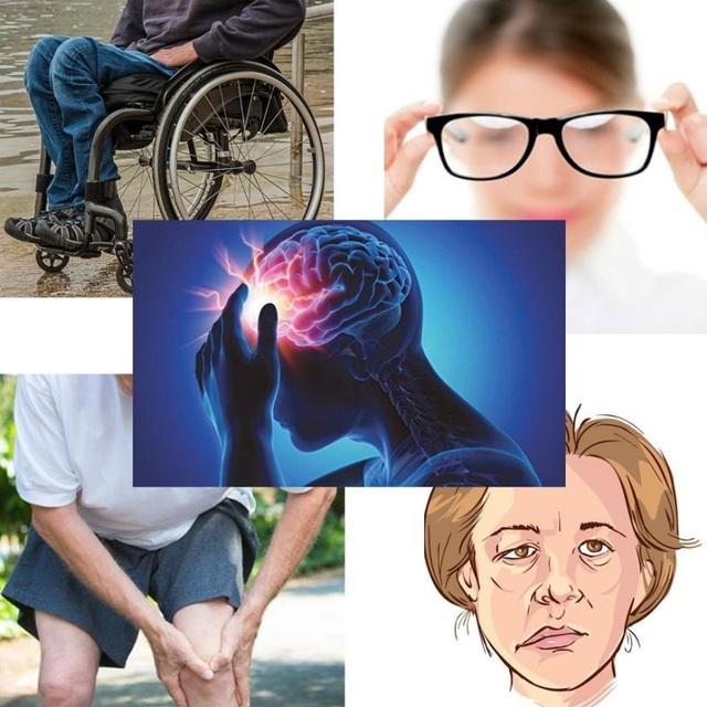 Cách khắc phục di chứng tai biến mạch máu não hiệu quả - 1