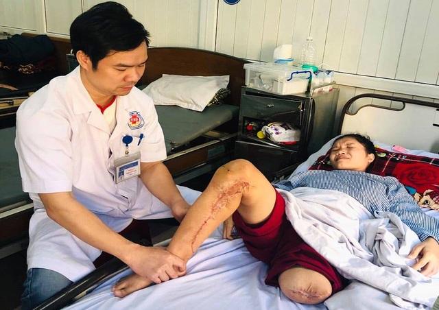 Người phụ nữ cùng lúc mất cả chồng lẫn con mơ một chiếc chân giả - 5