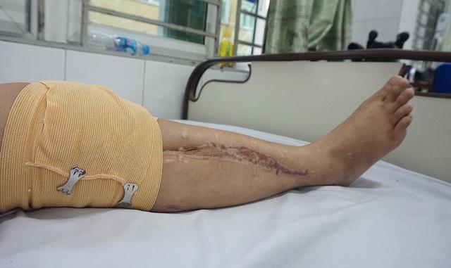 Người phụ nữ cùng lúc mất cả chồng lẫn con mơ một chiếc chân giả - 2