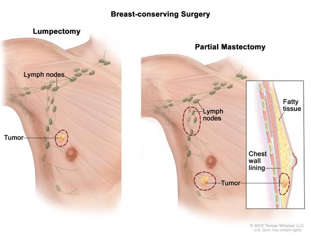 Lý do ung thư vú khó phát hiện sớm ở cánh mày râu - 1