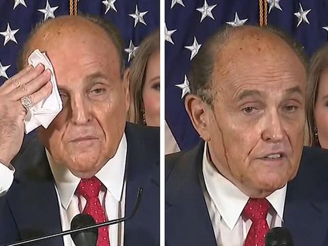 Luật sư ông Trump vã mồ hôi đến phai thuốc nhuộm tóc khi họp báo - 1
