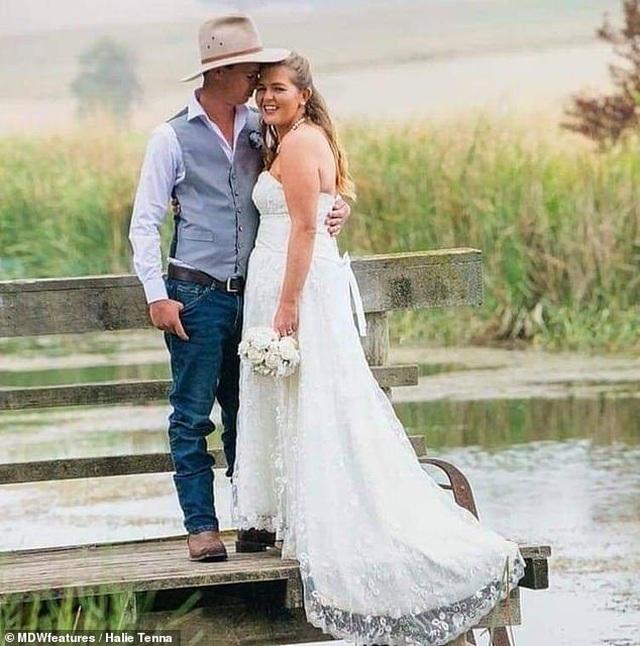 Người phụ nữ chủ động trao cơ hội chia tay cho chồng sau tai nạn bỏng - 2