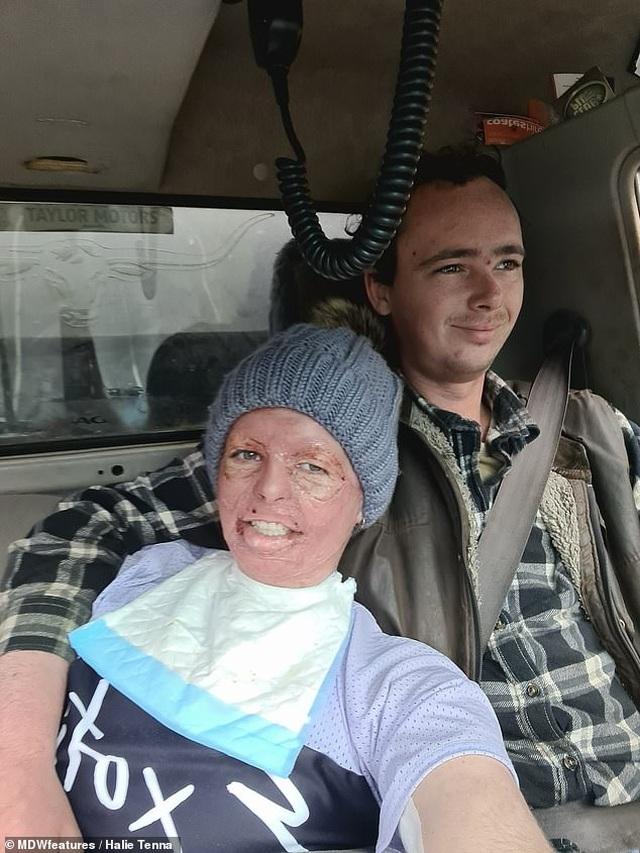 Người phụ nữ chủ động trao cơ hội chia tay cho chồng sau tai nạn bỏng - 3