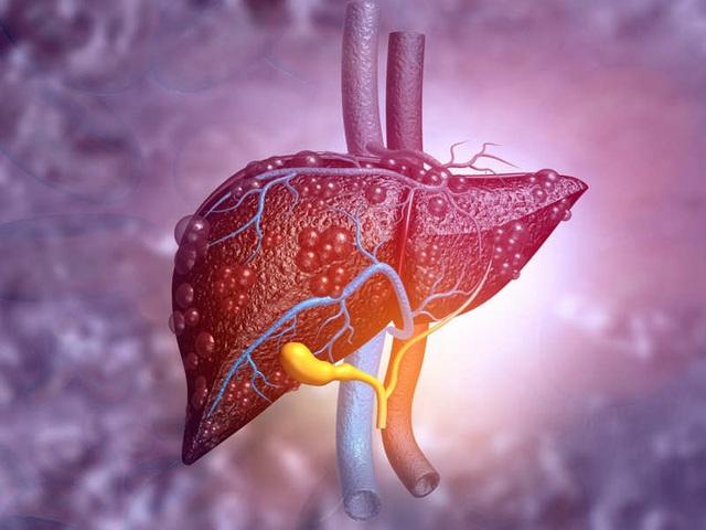 Khi gan đã bị xơ nên ăn gì để phục hồi tổn thương - 2