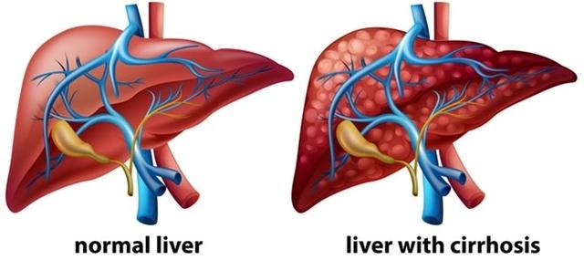 Khi gan đã bị xơ nên ăn gì để phục hồi tổn thương - 1
