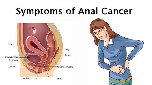 Những dấu hiệu cảnh báo ung thư hậu môn - 2