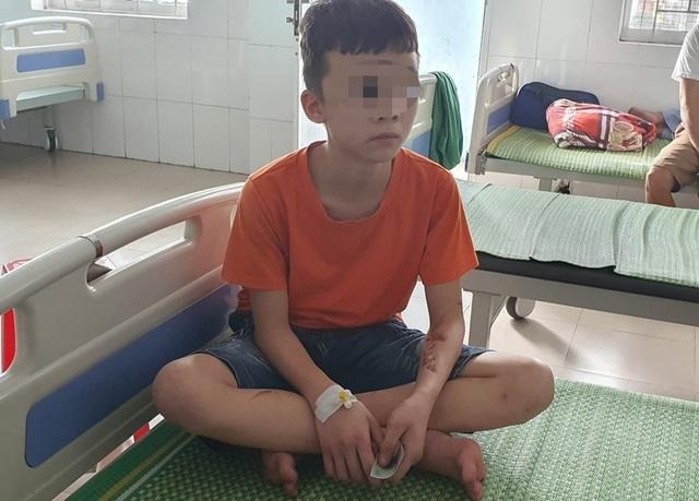 Vụ bạo hành ở Bắc Ninh: Quảng Ngãi lên phương án hỗ trợ cháu bé khi về quê - 2