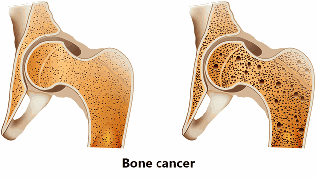 Các triệu chứng thường gặp của ung thư xương - 1
