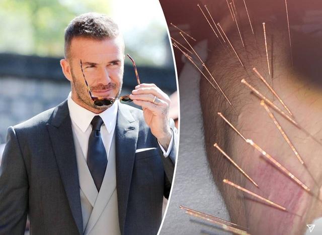 David Beckham tìm tới châm cứu để duy trì phong độ - 1