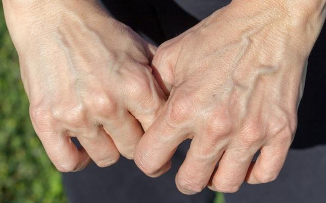 Bàn tay xuất hiện những dấu hiệu này cẩn thận gan có vấn đề - 1