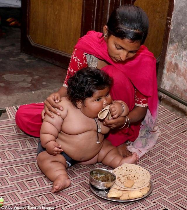 Hơn một tuổi nặng 25kg, bé gái sumo nhí Ấn Độ không thể tự đi vì béo phì - 1