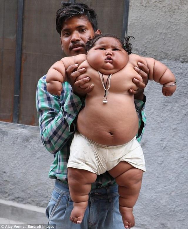 Hơn một tuổi nặng 25kg, bé gái sumo nhí Ấn Độ không thể tự đi vì béo phì - 2